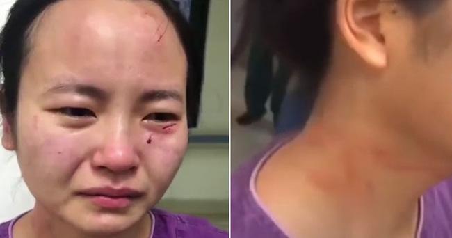 Nữ y tá bật khóc nức nở với gương mặt trầy xước, dính máu khi bị bệnh nhân nhiễm Covid-19 trong khu cách ly tấn công, từ chối điều trị-1