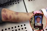 Thông tin mới vụ án bé gái 3 tuổi tử vong nghi bị mẹ và cha dượng bạo hành