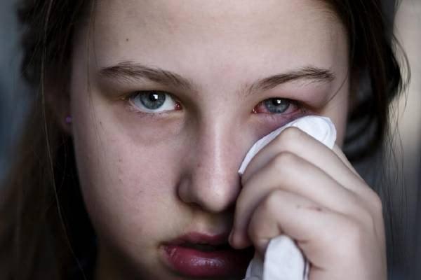 Viện Hàn lâm Nhãn khoa Hoa Kỳ: Đau mắt đỏ nhẹ có thể là triệu chứng của một người mắc COVID-19-1