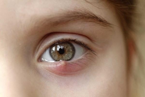 """8 dấu hiệu cảnh báo bệnh tật được khắc"""" rất rõ trên mắt: Ai cũng cần đọc để đối chiếu với sức khỏe bản thân-1"""