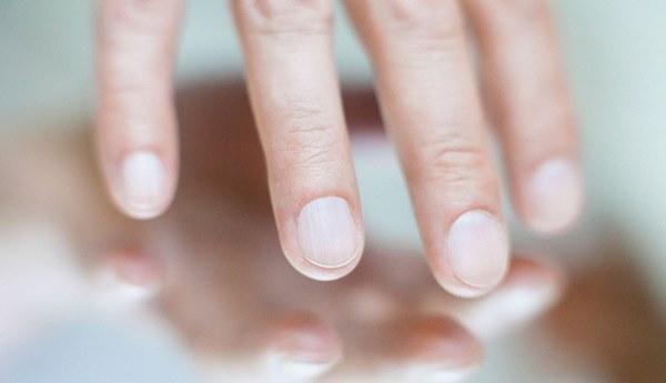 Nếu cơ thể có 4 dấu hiệu nhỏ này trên môi, mặt, tay, chân thì bạn cần kiểm tra sức khỏe ngay-3