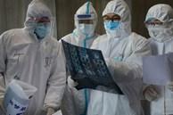 Bác sĩ BV Nhiệt đới Trung ương tiết lộ bệnh nhân Covid-19 thường có thêm những 'tín hiệu' khác biệt với bệnh cúm thông thường như thế này