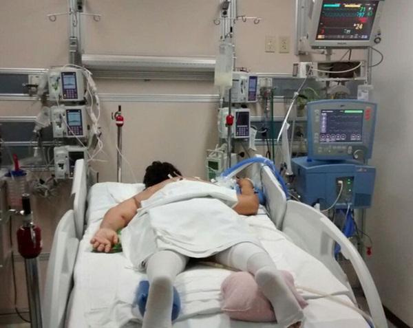 Trải nghiệm vượt cửa tử của những bệnh nhân Covid-19 trong phòng chăm sóc tích cực: Cảm giác giống như... bị chôn sống-3