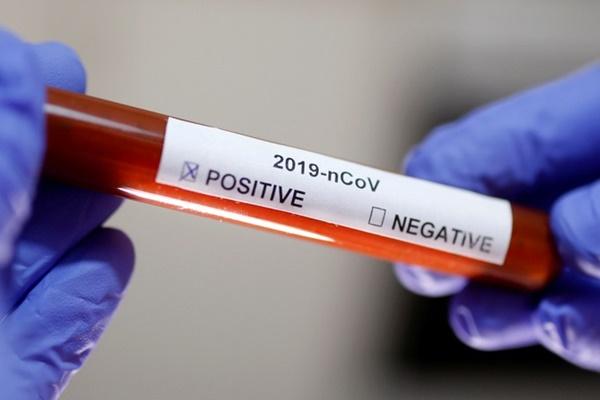 Quá trình điều trị cho bệnh nhân ung thư nhiễm Covid-19-1