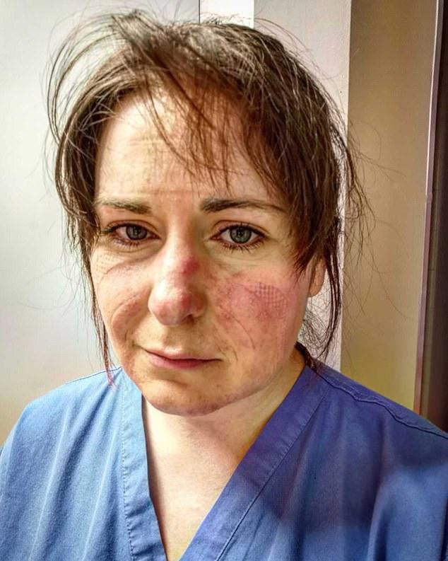 Nữ y tá xinh đẹp chia sẻ hình ảnh gương mặt biến dạng, đã đi qua địa ngục sau 65 tiếng làm việc và lời khẩn cầu dành cho tất cả mọi người-2