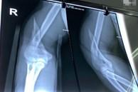 TP.HCM: Vật tay đùa giỡn với bạn, chàng trai 25 tuổi suýt tàn phế vì tai nạn kinh hoàng