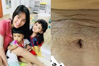 'Mẹ 3 con' Hải Băng chia sẻ hình ảnh cận cảnh vòng 2 đầy vết rạn da chằng chịt, nhiều bà mẹ đều thấy đồng cảm