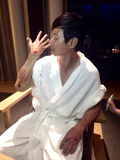 Sao Việt đau đớn do tai nạn hi hữu ở hậu trường: Trúc Anh bị xe lôi xềnh xệch, Lý Hải - Trương Ngọc Ánh đổ máu vì vai diễn-4