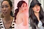 Những mỹ nhân Việt gặp biến chứng vì thẩm mỹ hỏng-6
