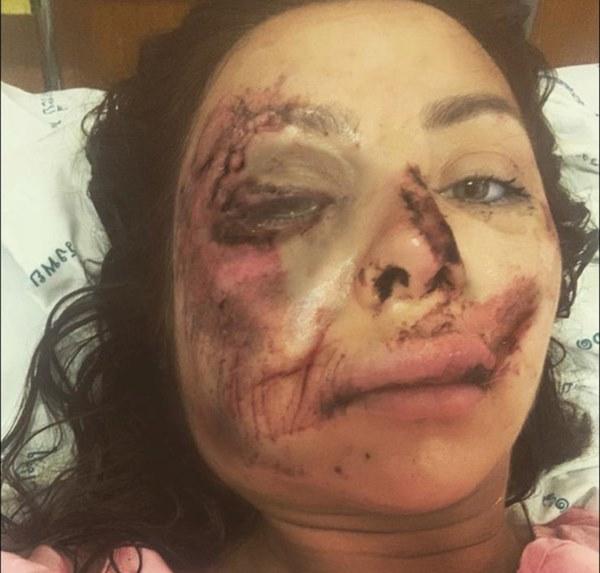 Chuyến chu du khắp thế giới bỗng hóa thảm kịch chỉ vì chiếc xe máy, gương mặt nữ giáo viên bị hủy hoại khiến người thân không thể nhận ra-1