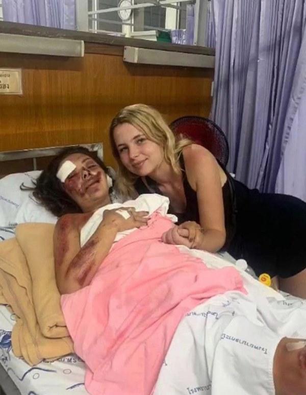 Chuyến chu du khắp thế giới bỗng hóa thảm kịch chỉ vì chiếc xe máy, gương mặt nữ giáo viên bị hủy hoại khiến người thân không thể nhận ra-2