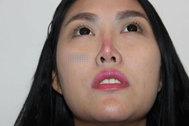 Những mỹ nhân Việt gặp biến chứng vì thẩm mỹ hỏng-4