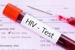 Người đầu tiên chữa khỏi HIV mà không cần ghép tủy xương-2