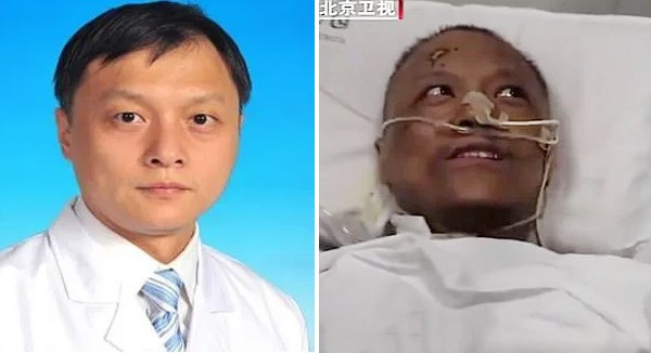 Hai bác sĩ Trung Quốc nhiễm Covid-19 thoát chết nhưng da đổi màu nâu-1