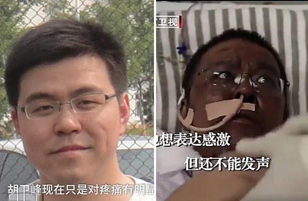 Hai bác sĩ Trung Quốc nhiễm Covid-19 thoát chết nhưng da đổi màu nâu-2