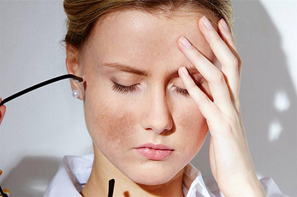 Dùng Vitamin C đều đặn da vẫn sạm đen, câu trả lời chính ở bước bảo quản sai lè mà nhiều chị em vẫn cho là đúng-5
