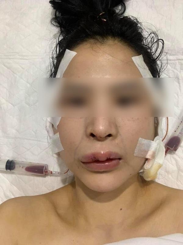 Bị lừa tiêm silicon lỏng đội mác filler, cô gái trẻ gặp biến chứng kinh hoàng, phải nạo vét khuôn mặt: Cảnh báo quan trọng chị em phải biết khi làm đẹp-3