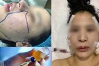 Bị lừa tiêm silicon lỏng đội mác filler, cô gái trẻ gặp biến chứng kinh hoàng, phải nạo vét khuôn mặt: Cảnh báo quan trọng chị em phải biết khi làm đẹp