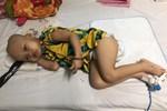 Bức thư đẫm nước mắt của người cha là giáo viên gửi con trai 9 tháng tuổi, cái bụng chực nổ tung vì căn bệnh hiểm nghèo-4