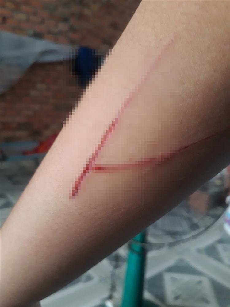 Bé gái trong vụ án hiếp dâm ở Sài Gòn vừa bị chém trên đường-1