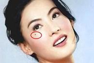 Ngó 3 nốt ruồi 'hút tài tụ lộc' quanh mắt, ai có 1 cái thôi là tha hồ hưởng phúc