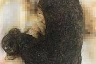 Bé gái 11 tuổi ở Hà Nội có khối u khổng lồ trong cơ thể chứa toàn tóc, nguyên nhân do 1 thói quen từ năm 2 tuổi của bé