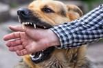 TP.HCM: Bé trai 2 tuổi bị chó Alaska cắn trúng cổ khi đang chơi trước nhà, nhập viện nguy kịch-2