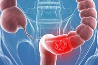 Bác sĩ cảnh báo 5 kiểu người có nguy cơ mắc ung thư đại tràng rất cao, nên khám gấp