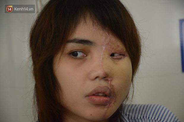 Vụ cô gái bị chồng sắp cưới tạt axit biến dạng gương mặt: Sau một năm đã trở lại với nụ cười xinh đẹp rạng rỡ-1