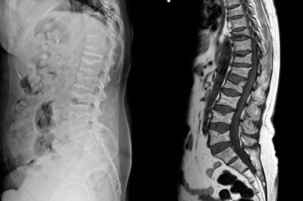 Đau lưng đi kèm 8 dấu hiệu này cơ thể bạn đang gặp nguy, cần đi khám càng sớm càng tốt-6