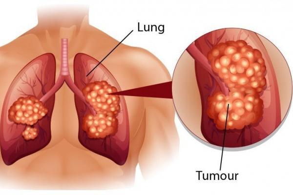 6 biện pháp phòng ung thư phổi-1