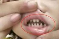 Con có hàm răng như 'răng cá mập', bà mẹ hối hận vì nguyên nhân là do mình