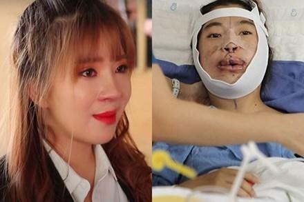 Cô gái Đồng Nai đổi đời sau 24 năm bị miệt thị 'người không môi'