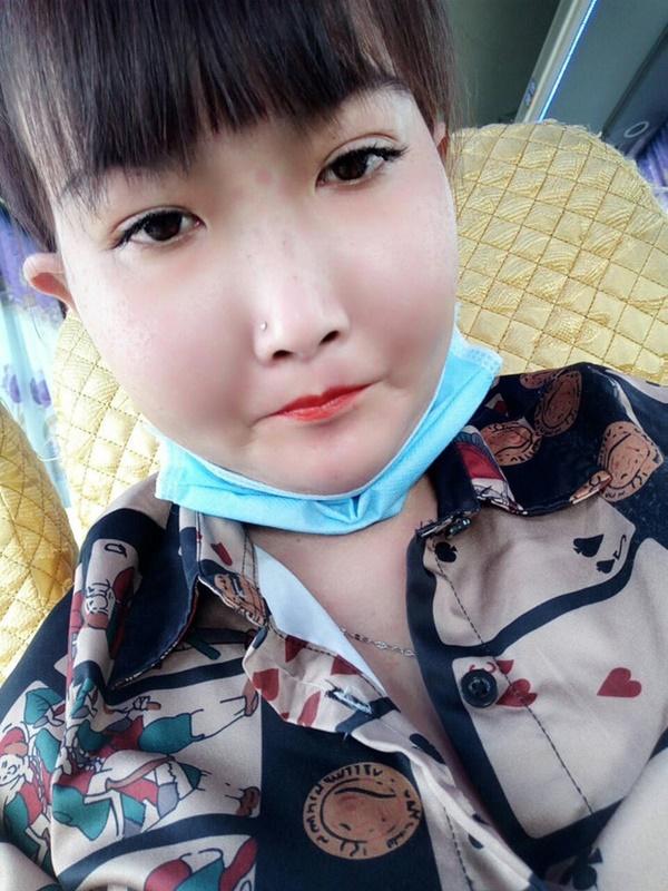 Cô gái Bến Tre mắc bệnh xơ cứng bì quay clip tiktok hút 2 triệu view: Gia cảnh khó khăn, bị trêu chọc vì gương mặt kì lạ-4