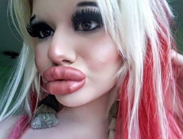 Bơm môi dày như cặp xúc xích chập đôi, tiêu chuẩn đẹp của một số cô gái sao lạ quá!-3