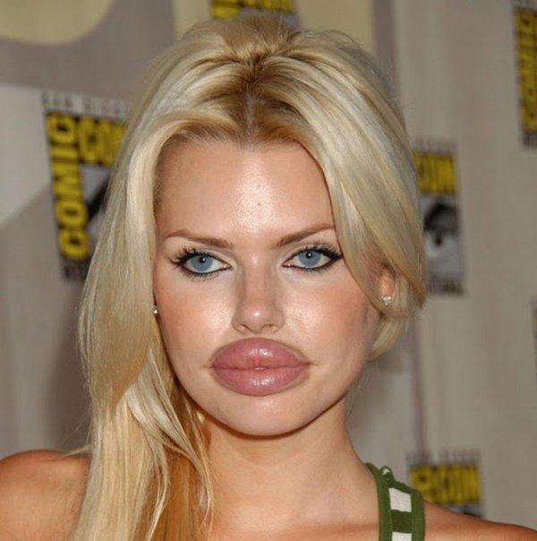 Bơm môi dày như cặp xúc xích chập đôi, tiêu chuẩn đẹp của một số cô gái sao lạ quá!-11