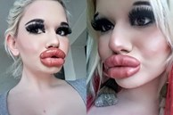 Bơm môi dày như cặp xúc xích chập đôi, tiêu chuẩn đẹp của một số cô gái sao lạ quá!