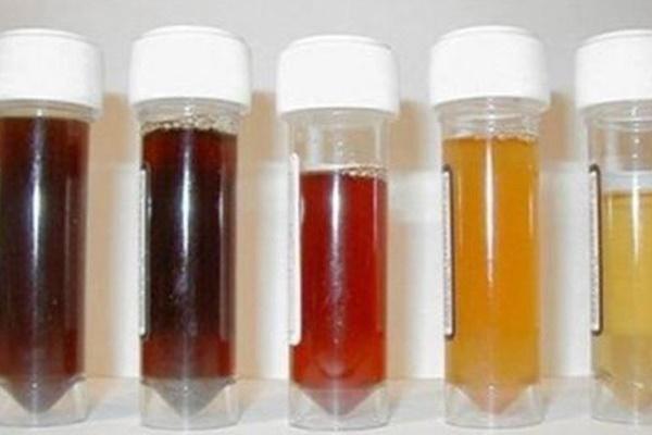 Màu sắc nước tiểu có thể cảnh báo vấn đề ở thận và tăng huyết áp-1