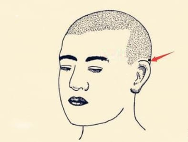 Nốt ruồi tài lộc là gì? Ở những vị trí nào trên cơ thể của bạn có nốt ruồi tài lộc-2