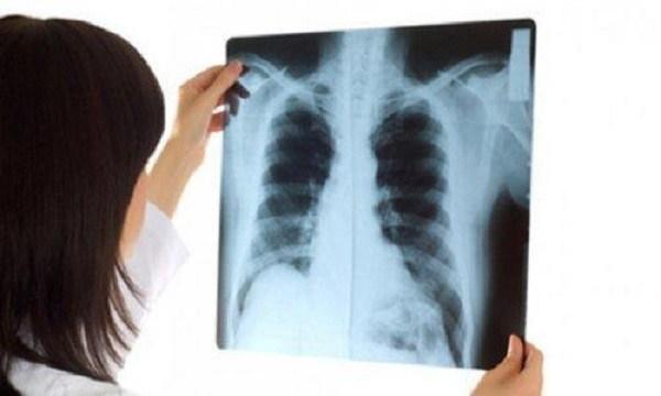 Thói quen không ngờ giết chết phổi, nhiều người Việt làm hằng ngày-1