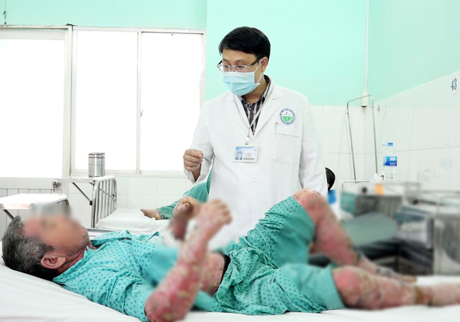 Mua thuốc trị vảy nến trên mạng giá 200 ngàn đồng, người đàn ông ở Đắk Lắk bị sưng phù đau nhức khủng khiếp-2
