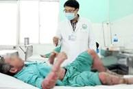 Mua thuốc trị vảy nến trên mạng giá 200 ngàn đồng, người đàn ông ở Đắk Lắk bị sưng phù đau nhức khủng khiếp