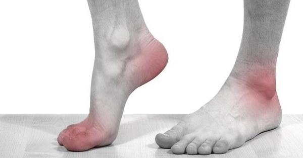 4 dấu hiệu xuất hiện ở chân cảnh báo nhiều bệnh nguy hiểm-1