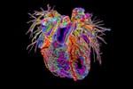 BS kể chuyện điều trị bệnh nhân Covid-19 nặng: 8 người thay nhau ép tim rã rời tay, có lúc tưởng buông bỏ...-3
