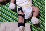 Sự thật vụ bé 2 tháng tuổi nghi bị cha ruột bạo hành tới gãy chân ở Bình Phước-2