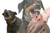 Nghệ An: Chó phát bệnh dại cắn liên tiếp 2 cháu nhỏ