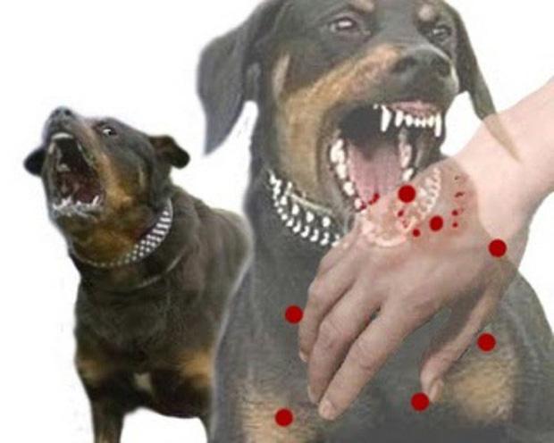 Nghệ An: Chó phát bệnh dại cắn liên tiếp 2 cháu nhỏ-1