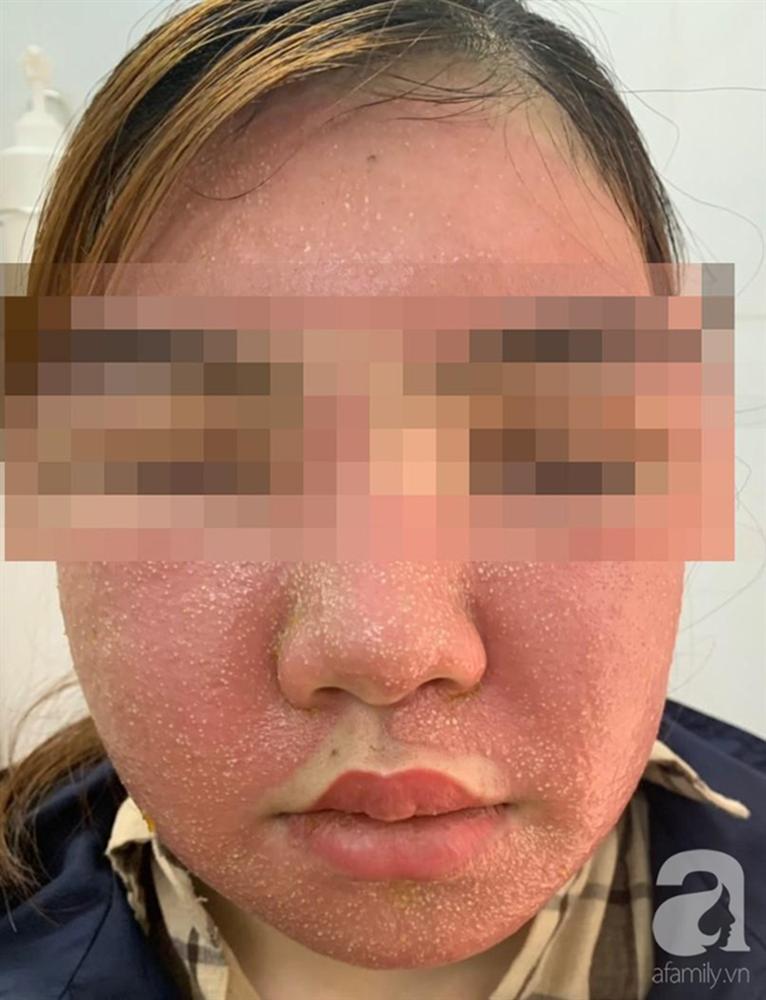 Đắp mặt nạ làm trắng da giá 600.000 đồng, mặt người phụ nữ sưng phù, mụn mủ nhiều kinh khủng-1