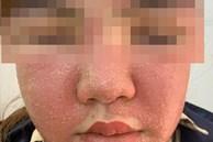 Đắp mặt nạ làm trắng da giá 600.000 đồng, mặt người phụ nữ sưng phù, mụn mủ nhiều kinh khủng