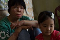 4 năm tìm lại bình yên của cô gái bị chồng tưới xăng thiêu sống